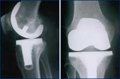 Oberflächenersatz (Knie-TEP)